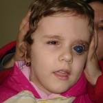 Noodhulp bij urgente medische gevallen, Celina heeft dringend een oogoperatie nodig