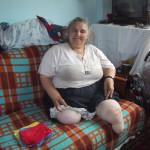 Ook deze vrouw heeft een prothese nodig